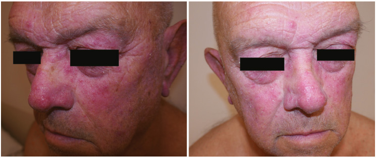 Figure 1. Erythematous facial rash on a male patient.