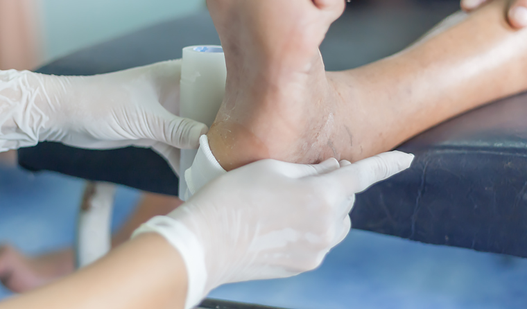 Researchers say diabetic foot disease may be Australia's least known major health problem.