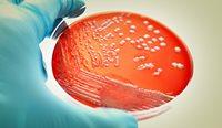 Methicillin-resistant Staphylococcus aureus (MRSA) and other resistant bacteria are becoming a major health problem.