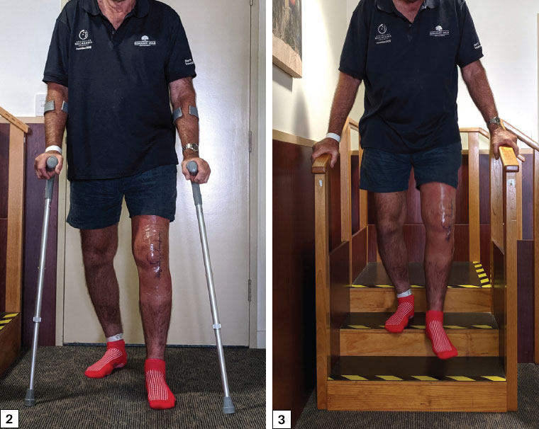 Figure 2. Gait retraining on the first postoperative day following total knee replacement surgery. Figure 3. Stair climb practice on the first postoperative day following total knee replacement surgery