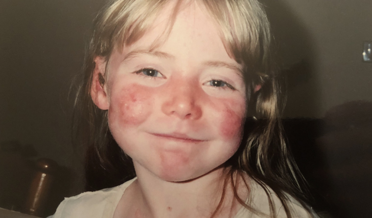 Eliza Baird, who had the very rare skin condition epidermolysis bullosa.