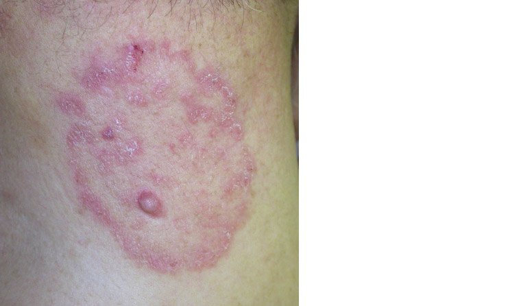 AJGP-10-2019-Clinical-Kovitwanichkanont-Superficial-Fungal-Infections-Fig-4.jpg