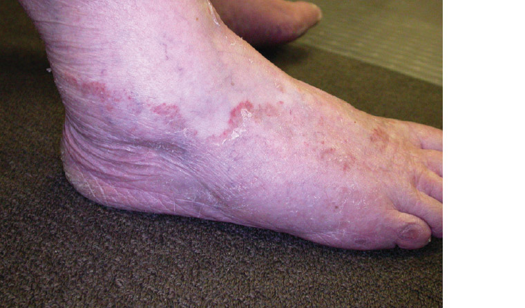 AJGP-10-2019-Clinical-Kovitwanichkanont-Superficial-Fungal-Infections-Fig-2.jpg