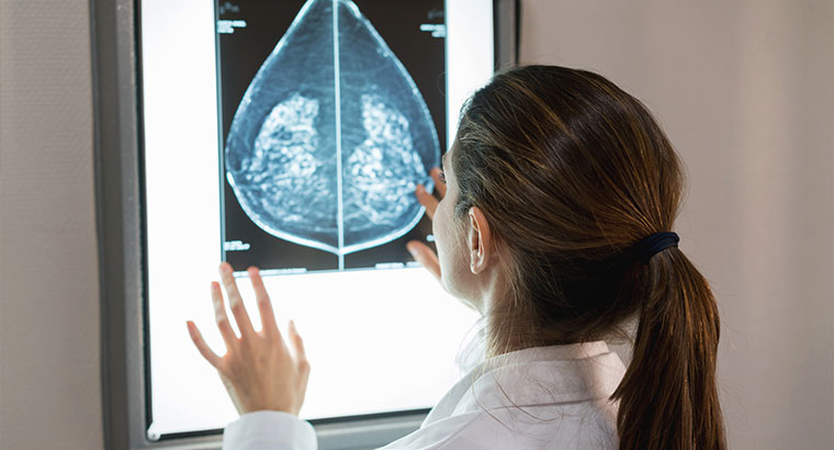 Doctor checking breast X-ray