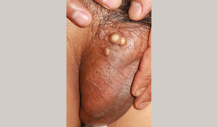 Racgp Man With Indurated Scrotal Nodules