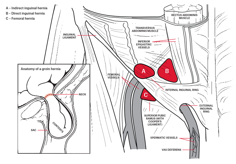 Racgp General Practitioner Primer On Groin Hernias