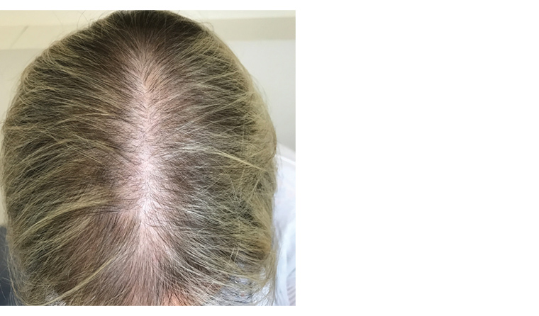 Racgp Female Pattern Hair Loss