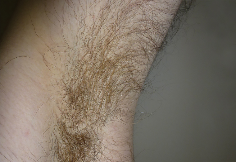 RACGP - Doctor my armpit hair has turned yellow