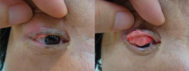 RACGP - Eyelid lesions in general practice