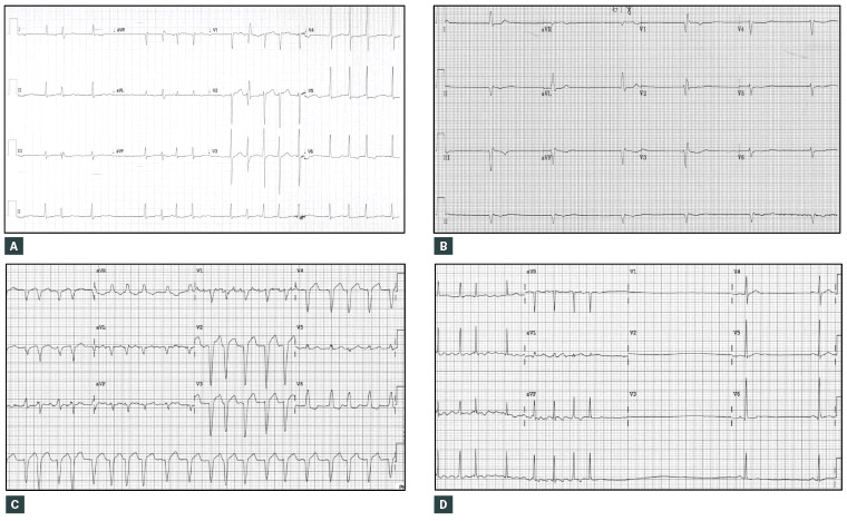 what does rapid ventricular response mean