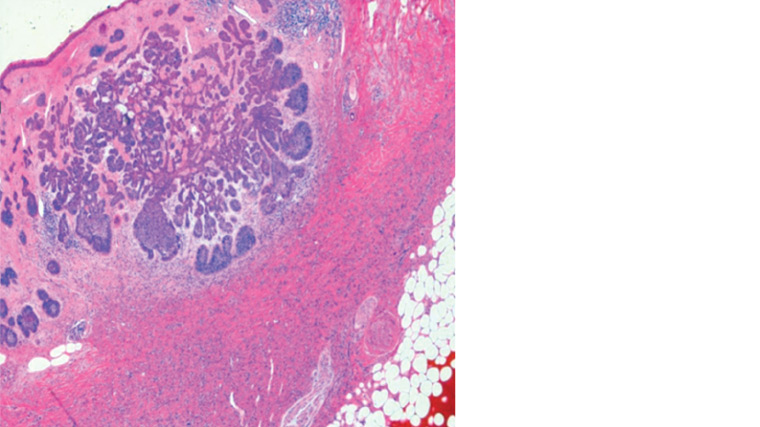 Figure 3. Basal cell carcinoma and dermatofibroma histological slide stained with haematoxylin and eosin