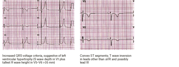 Figure 2. Typical electrocardiographic findings for the athlete.