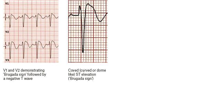 Figure 4. Electrocardiography findings for Brugada syndrome.