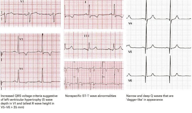 Figure 5. Some characteristic findings for hypertrophic cardiomyopathy on electrocardiography.