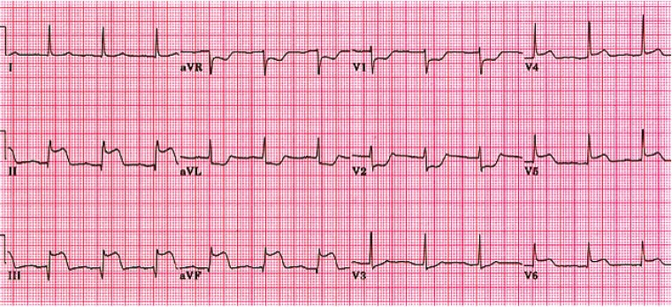 Figure 6. Example of electrocardiogram during an acute myocardial infarction.