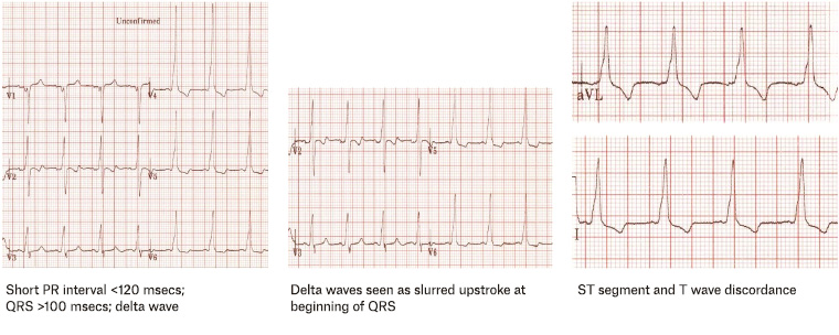 Figure 7. Possible electrocardiographic findings for Wolff–Parkinson–White syndrome.