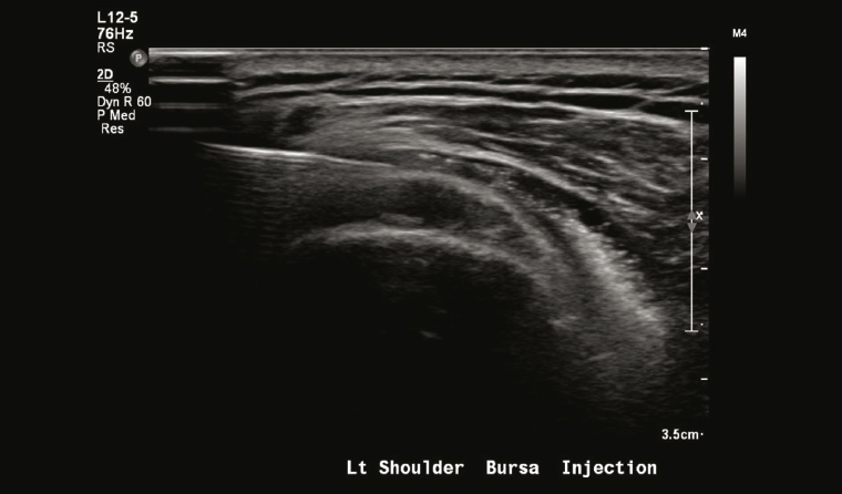 Figure 2. Ultrasound-guided injection into thickened subacromial bursa.