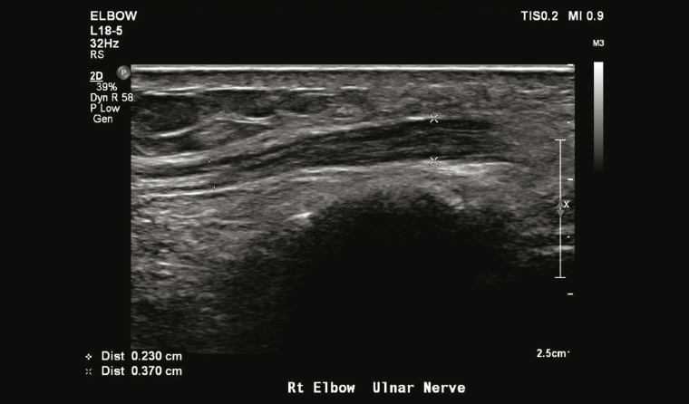 Figure 4. Thickened ulnar nerve in the elbow. Ultrasound-guided injection into the perineural space can be performed for symptomatic relief and to establish a diagnosis of ulnar neuritis.
