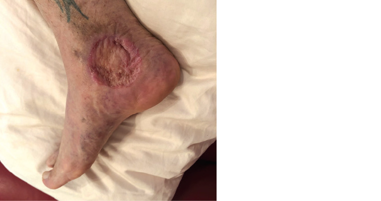 Figure 3. Person's right medial ankle four months after a wide local excision and split skin graft.