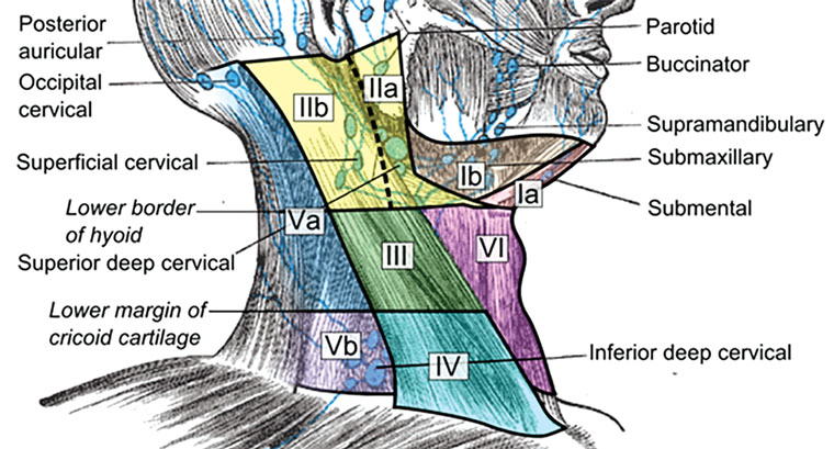 Figure 1. Anatomical diagram depicting the six levels of the neck