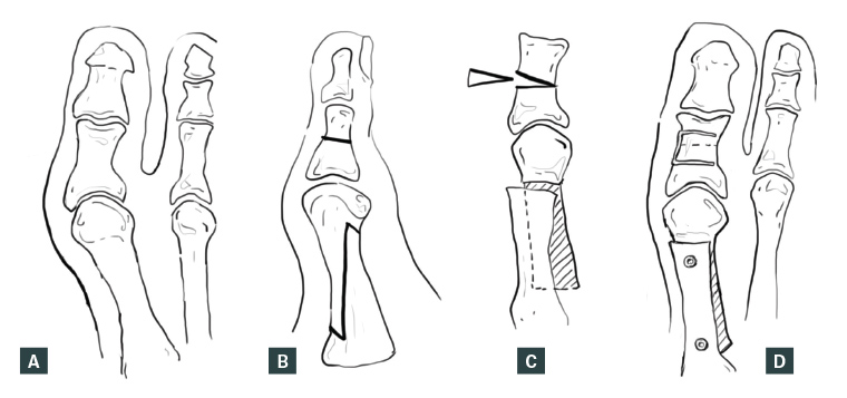 Figure 2. Corrective osteotomy (scarf and akin procedures). A. Preoperative deformity; B. Osteotomy cuts; C. Realignment of metatarsal and closing wedge osteotomy of proximal phalanx; D. Fixation.