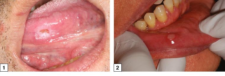 papillary lesion ventral tongue viermi după tratamentul antihelmintic