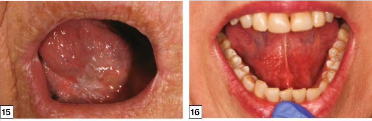 papillary lesion ventral tongue