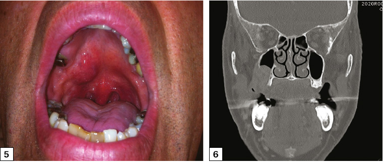 Figure 5. Right palatal swelling at the junction of the hard and soft palate. The lesion was firm on palpation. The overlying mucosa was not ulcerated. The diagnosis was mucoepidermoid carcinoma of the right palate, and treatment involved surgical excision (maxillectomy) and free flap reconstruction. Figure 6. Coronal computed tomography scan showing extension of a right palatal tumour into the right maxillary sinus but not extending to involve the right orbital floor.
