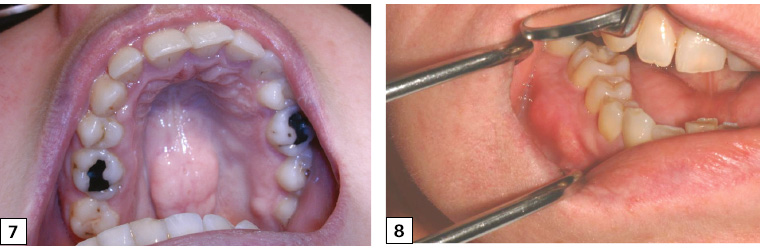 Figure 7. Torus palatinus – a bony hard protuberance found in the midline of the hard palate. Figure 8. Bony exostoses of the lower right buccal alveolus.