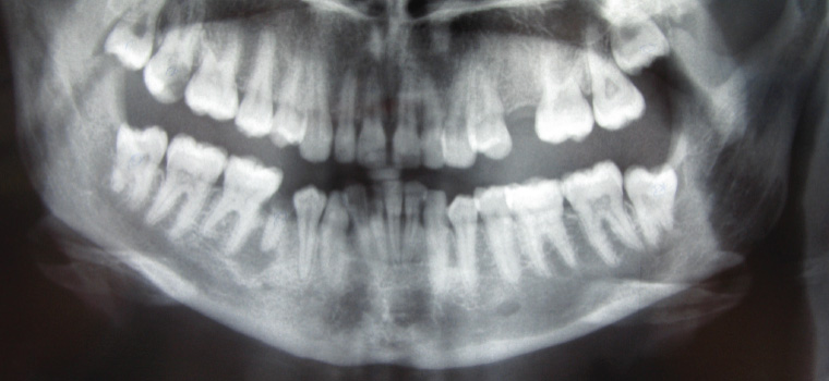 Figure 9. Orthopantomogram showing a lower right second premolar tooth with a grossly carious crown and a well-defined periapical radiolucency characteristic of a periapical (radicular) cyst arising from the non-vital tooth.