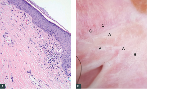 Figure 2. Histology and dermoscopy of lichen sclerosus of the vulva (LSV)