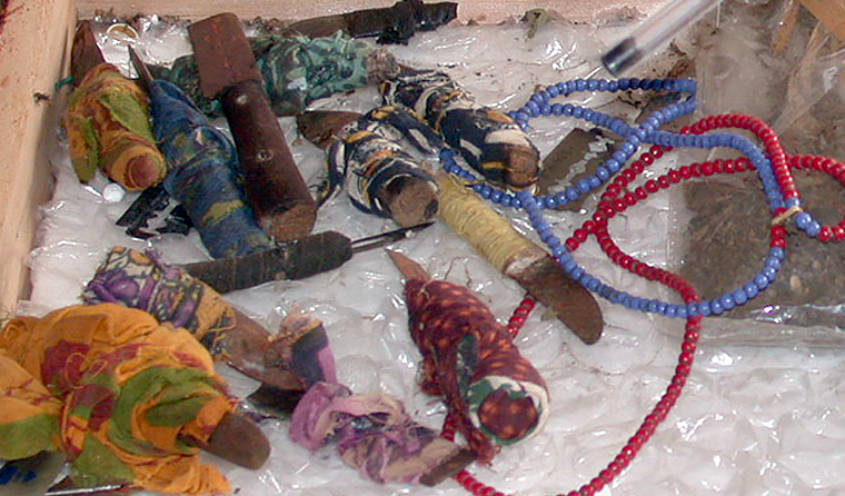 Knives used for FGM. Photo: Wikimedia Commons