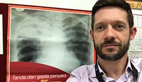 Infectious diseases physician Justin Denholm is keen to spread education about latent TB infection in Australia as widely as possible.