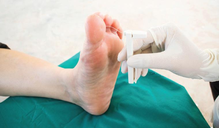 Racgp Diabetic Foot Ulcer
