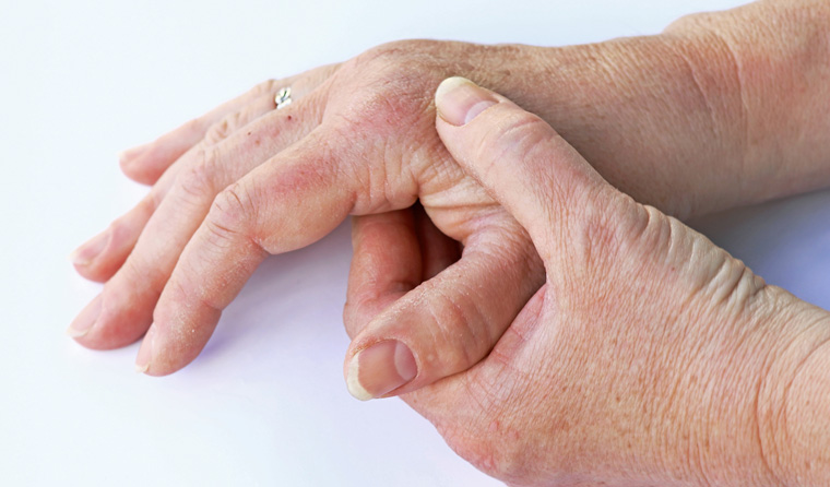 Hands with arthritis.