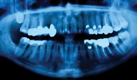 Common causes of 'swelling' in the oral cavity