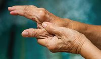 Basal thumb arthritis: Treatment strategies for managing pain